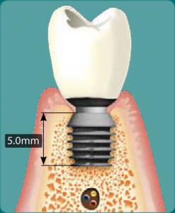 implanty bicon