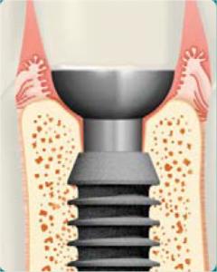 implanty bicon 5