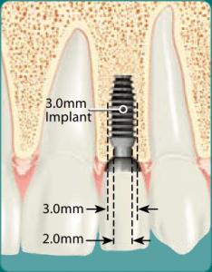 implanty bicon 2