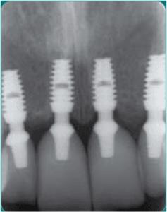 implanty bicon 3