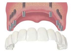 proteza na implantach