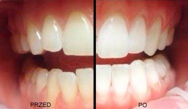 przed i po wybielaniu