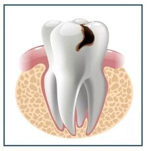 próchnica zęba