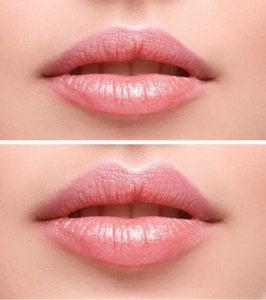 kwas - modelowanie ust