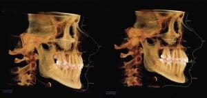 zdjęcia cefalometryczne