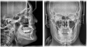 zdjęcie cefalometryczne