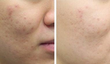Aquapure - przed i po