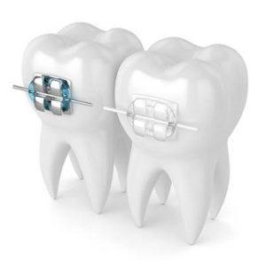zamki ortodontyczne