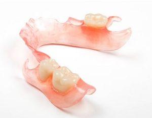 Protezy zębowe elastyczne