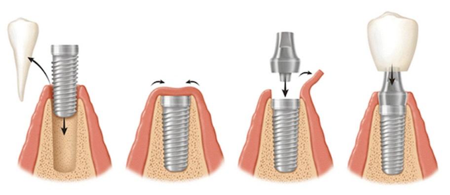 implanty etapy