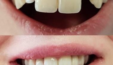 implanty przed i po