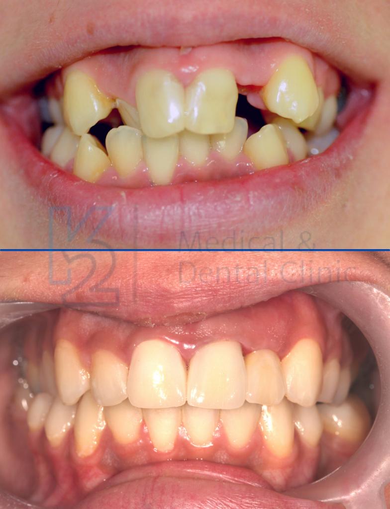 ortodoncja efekty